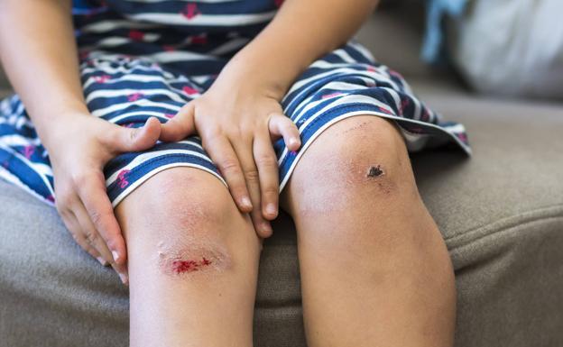 Cómo actuar ante una herida que sangra? | El Correo
